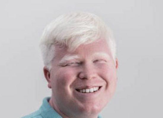Comissão aprova obrigação de o SUS fornecer protetor solar e óculos escuros a albinos