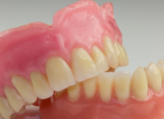 Prefeitura de Itacaré entregou gratuitamente 100 prósteses dentárias
