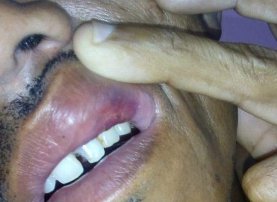 TORTURA: Policiais de Coaraci cometem barbaridades com jovem trabalhador