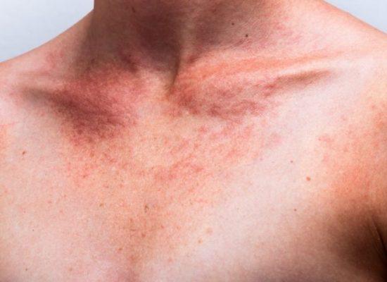 Seis estados brasileiros têm estimativa de maior índice de câncer de pele