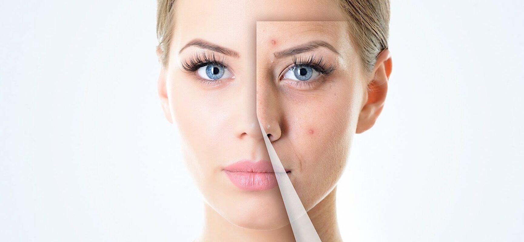 'De repente 30': cuidado redobrado com a pele. Especialista dá algumas dicas para manter a pele mais firme e saudável!
